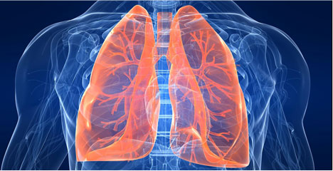 pulmonary embolism, pe, symptoms, treatment