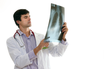 doctor with xray, xray, emphysema, barrel chest